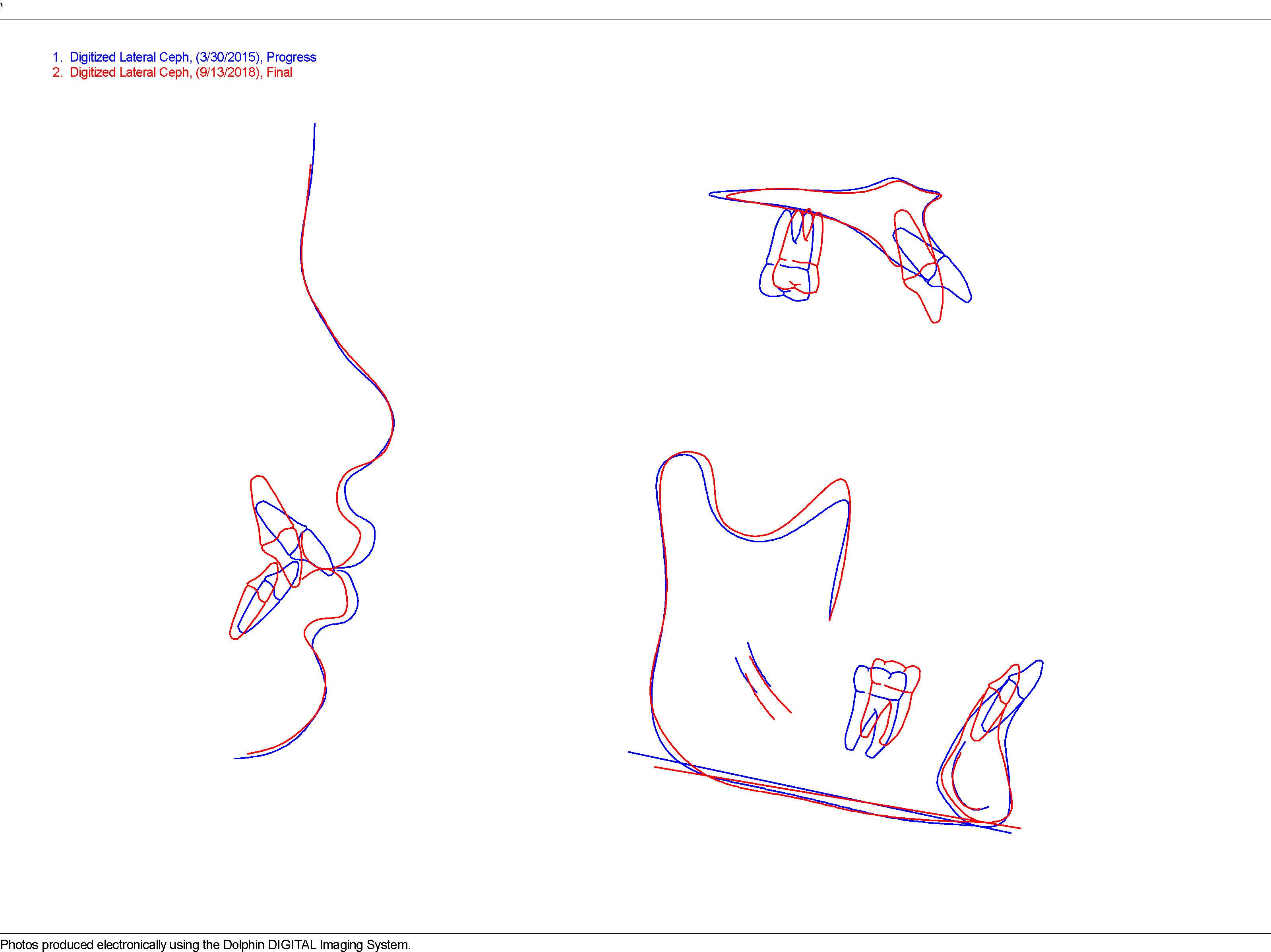 Superimposition Progress-Final_002