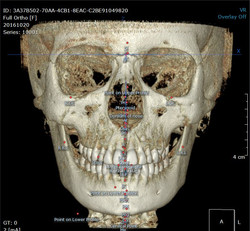 Full Ortho Tracing snapshot