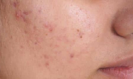 Kiss Your Pimples Goodbye
