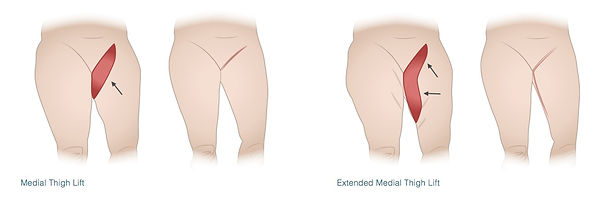Thigh-final-illustration-new.jpg