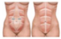 tummy muscles.jpg