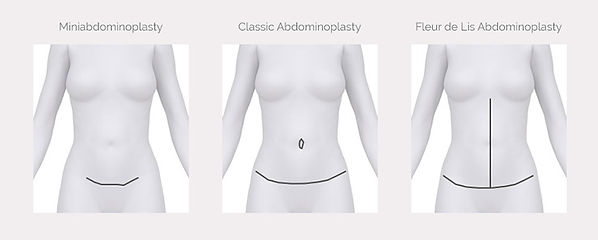 types-of-abdominoplasty-.jpg
