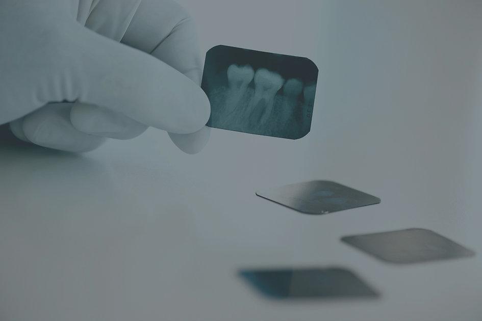 Dental%252520x-ray_edited_edited_edited.
