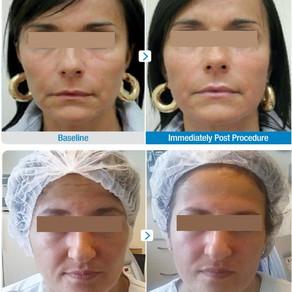 HIFU for skin tightening and lifting