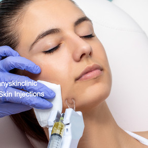 Mesotherapy (Skin Vitamin Injections)