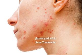 acne treatments _botanyskinclinic.jpg