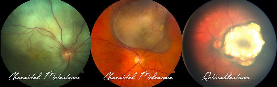 Intraocular tumours, choroidal melanoma, retnoblastoma, choroidal mtastasis, ocular oncology, EyeCan 2018, OPAI 2018 Jaipur, LVPEI