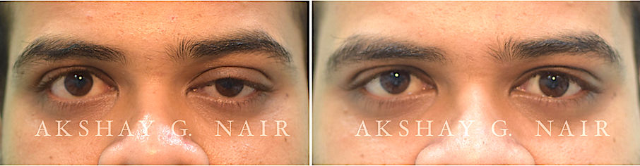 Droopy eyes, ptosis, aponeurotic ptosis, levator resection