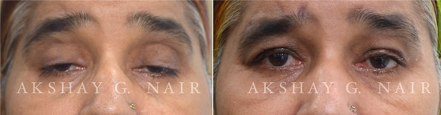 Severe ptosis, CPEO, ptosis surgery in CPEO, Silicone sling, Tarsofrontalis sing