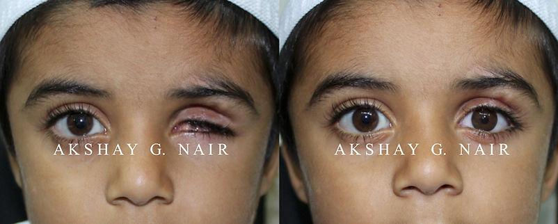artificial eye, prosthesis, ocular prosthesis