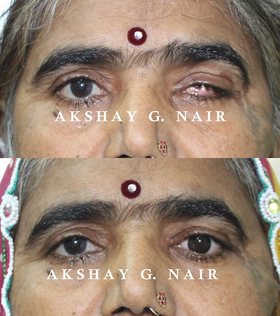 Artifical eye, prosthesis, ocular prosthesis, ocularist Mumbai, artifical eye Mumbai, evisceration, enucleaton