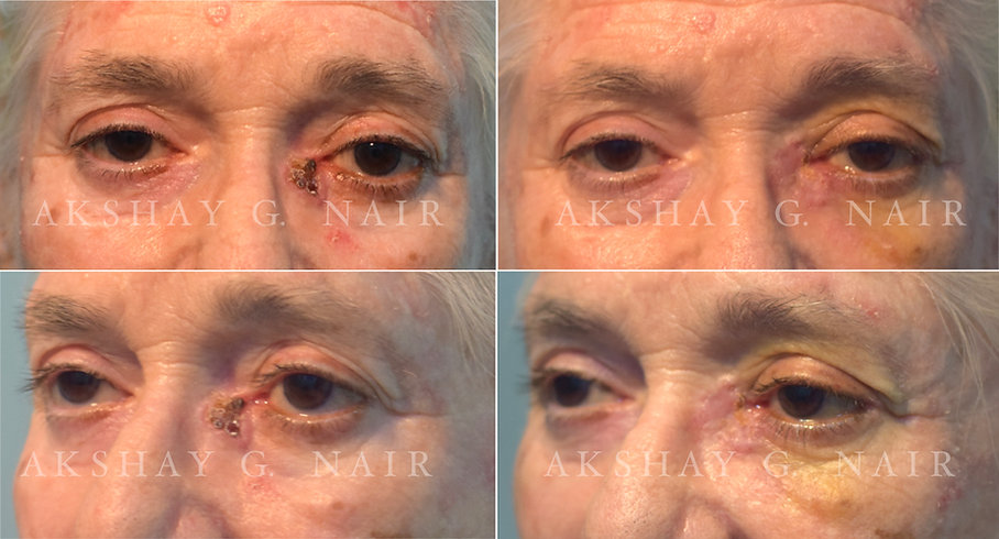 Eyelid basal cell carcinoma, squamous cell carcinoma of the eyelid, Mohs surgery, skin graft