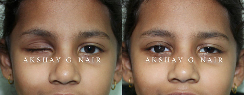 Retinoblastoma eucleation evisceration prosthesis ocular,