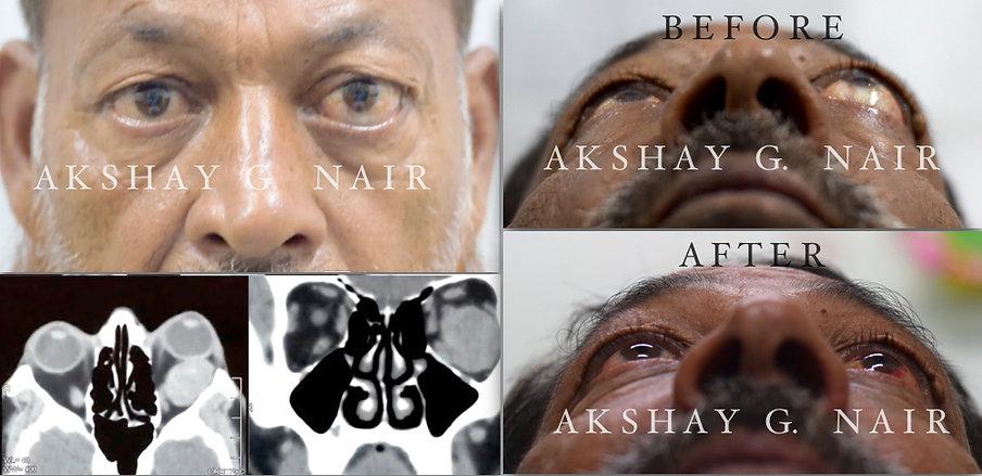 Dr Akshay G Nair, Chembur, proptosis, orbital tumour, orbitotomy, cavernous hemangioma