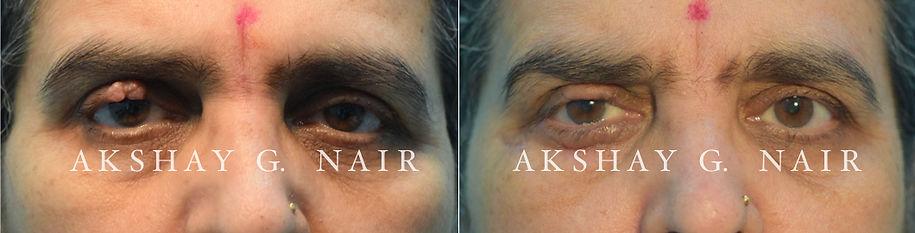 eyelid bumps, Cutler Beard, eyelid mass, eyelid tumours, akshay nair, trichoblastoma