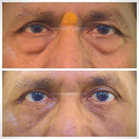 blepharoplasty eyelid bags.jpg