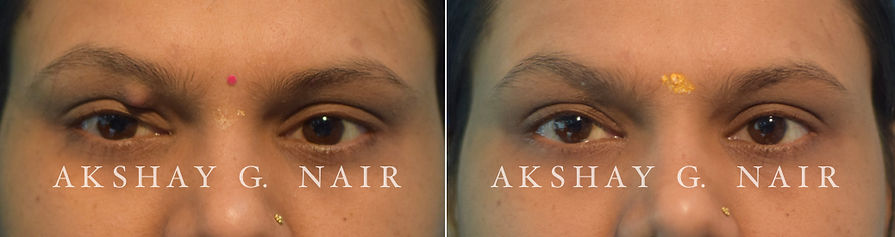 Chalazion incision and curettage, I&C, eyelid tumours, benign eyeli tumours, Akshay Nair, eyelid surgeon Ghatkopar,