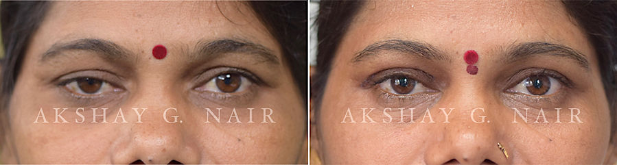 Post-traumtic ptosis, traumatic ptosis, mild ptosis, drooping eyelids, Dr Akshay Nair