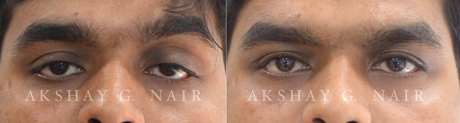 Small Eyes since birth, ptosis, droopy eyes, eye doctor Mumbai, eye doctor Chembur