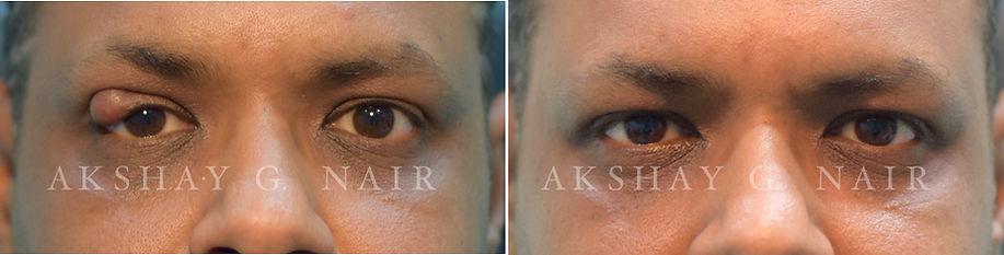 Chalazion, stye, eyelid surgery, tumour, Akshay Nair Vashi, eyelid surgeon, blepharoplasty, ptosis