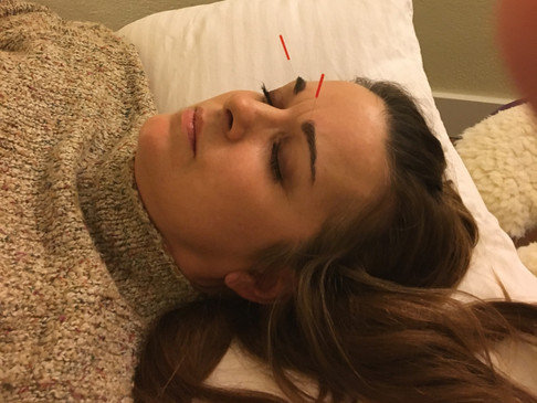 Acupuncture Awesomeness