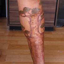 Cobertura de cicatriz na perna por atropelamento
