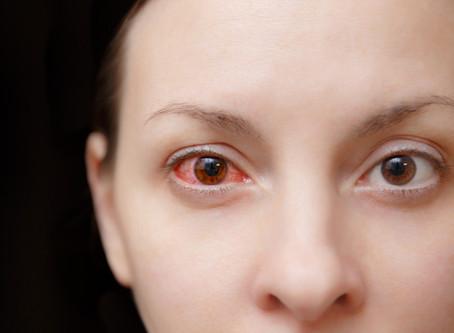 Allergic Conjunctivitis - Allergy Testing Brisbane | Allergy Testing Gold Coast