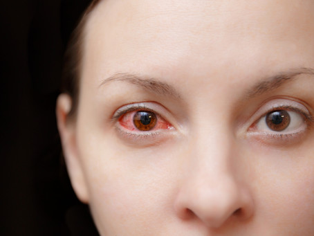 Allergic Conjunctivitis - Allergy Testing Brisbane | Allergy Testing Gold Coast | Sunshine Coast