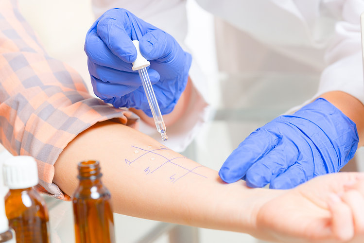 Medical doctor doing allergy tests in laboratory.jpg