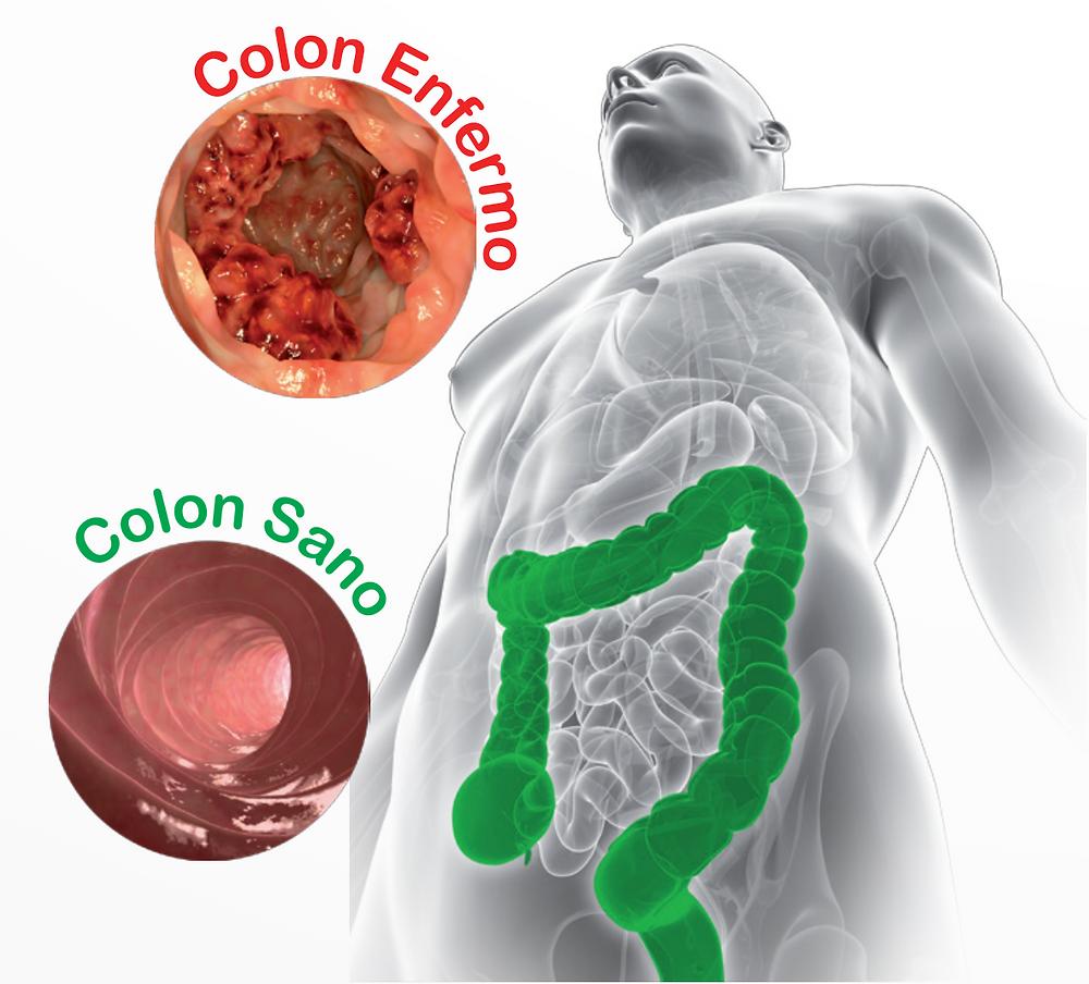 medicația pentru giardiază papilloma quali sintomi