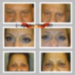 מטופלים לפני ואחרי הטיפול באינסטנטלי אייג'לס ¬  להעלמת קמטים בעור ושקיות מתחת לעיניים