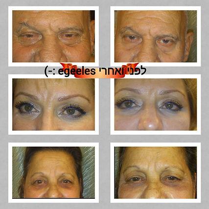 מטופלים לפני ואחרי הטיפול באינסטנטלי אייג'לס ¬| להעלמת קמטים בעור ושקיות מתחת לעיניים
