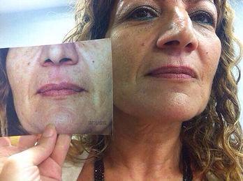 מטופלת לפני ואחרי טיפול