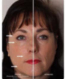.אשה שהצד המואר (השמאלי) אחרי טיפול באינסטנטלי אייג'לס וממש רואים את ההבדל. הצד המטופל הרבה יותר חלק וזוהר
