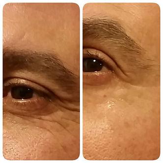 הסרת נפיחות מתחת לעיניים והסרת קמטים באמצעות - אינסטנטלי אייג'לס. תמונת חצי פנים לפני ואחרי.