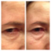 תמונה הממחישה תוצאה של טיפול באינסטנטלי אייג'לס. מימין לפני הטיפול משמאל אחרי הטיפול. רואים את ההבדל.
