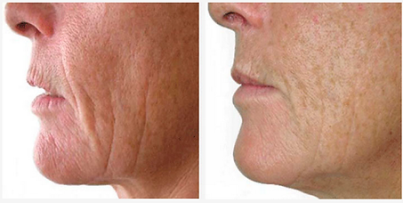 Before/After picture - Red Light Therapy penetrates to the bottom of the skin's dermis layer and into the subcutaneous fatty layer, stimulating the production of collagen and elastin proteins.  It increases the skin's metabolism of healthy oxygen and nutritional molecules. This gentle, yet extremely effective treatment is very beneficial as an anti-aging and skin rejuvenation tool and aids in fading sunspots and hyper pigmentation by stimulating the skin cells vitality and permeability. Red light therapy is a non-invasive, non-surgical face lift alternative, helping the skin maintain elasticity and firmness, while refining texture and smoothing lines and wrinkles