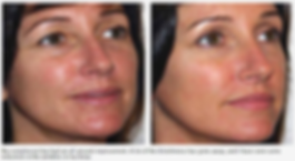 Before/After picture - Red Light Therapy penetrates to the bottom of the skin's dermis layer and into the subcutaneous fatty layer, stimulating the production of collagen and elastin proteins. ​  It increases the skin's metabolism of healthy oxygen and nutritional molecules. This gentle, yet extremely effective treatment is very beneficial as an anti-aging and skin rejuvenation tool and aids in fading sunspots and hyper pigmentation by stimulating the skin cells vitality and permeability. Red light therapy is a non-invasive, non-surgical face lift alternative, helping the skin maintain elasticity and firmness, while ​refining texture and smoothing lines and wrinkles