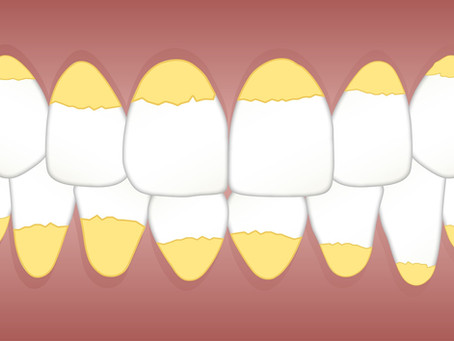 What is a Full Mouth Debridement?