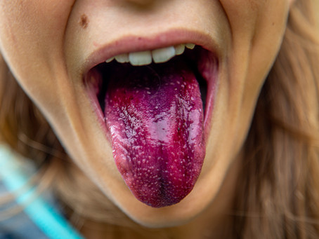 Here is why you should brush your tongue...