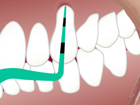 What does dental probing mean?