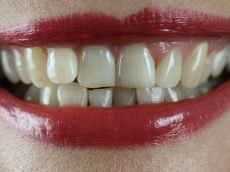 The effects of Teeth Grinding and Clenching (Bruxism).