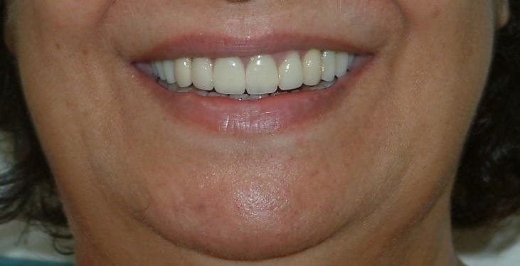 אחרי ציפוי שיניים.JPG