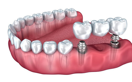 השתלת שיניים בום אחד.jpg