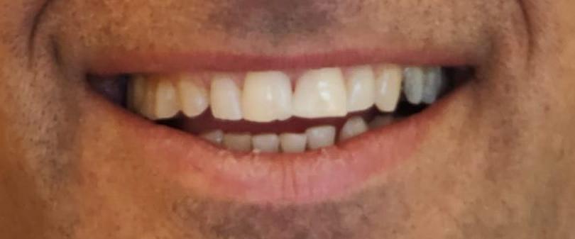 סגירת רווח בשיניים בעזרת ציפוי - אחרי.jp