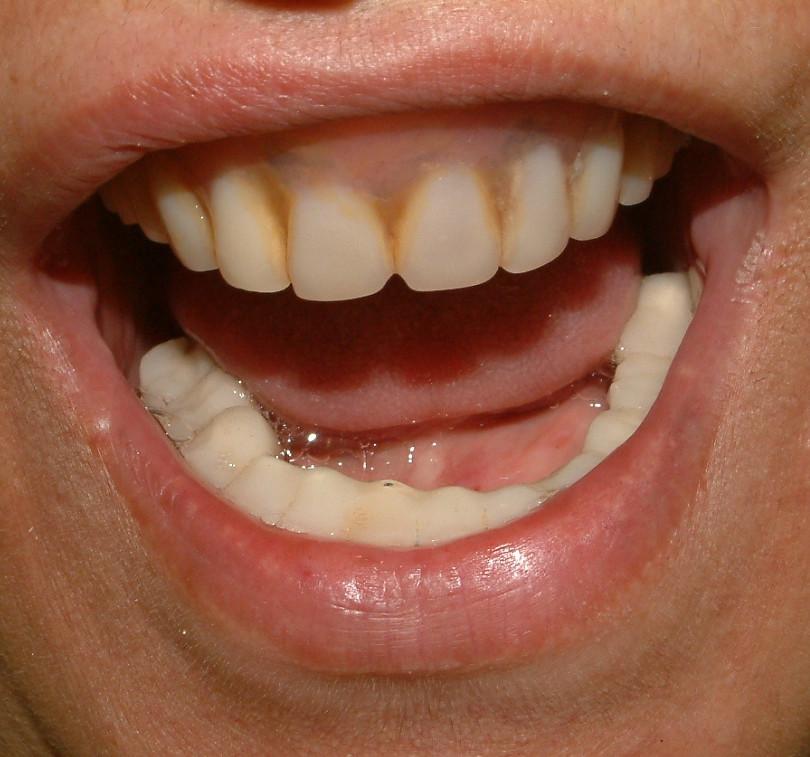 לפני ציפוי שיניים והלבנה.JPG