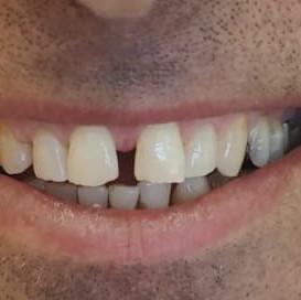 ציפוי שיניים לסגירת רווח - לפני.jpg