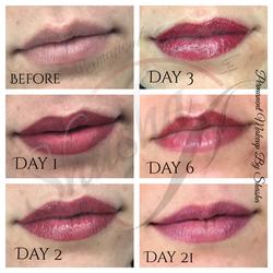 Ombre Lip healing process
