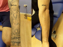 sleeve removal