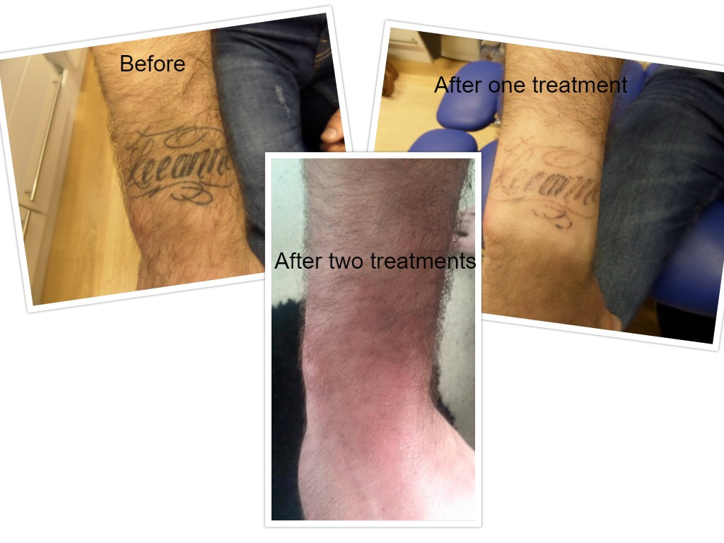 Removal in just 2 treatments